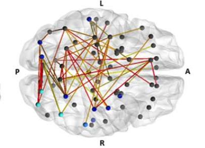 Breaking news: L'infusione di cellule staminali cordonali autologhe aumenta la connettività cerebrale e l'attività dei motoneuroni