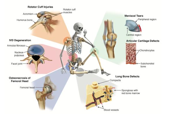 Riparazione muscoloscheletrica con le cellule mesenchimali: dove siamo?